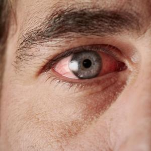 Infectious uveitis prevalent in Indonesia