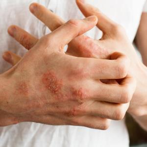 Short-term systemic corticosteroid therapy may be useful in atopic dermatitis