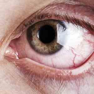 Ocular surface involvement in psoriatic patients entails regular check-up, treatment