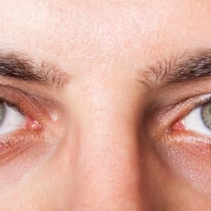 Open-angle glaucoma tied to higher incidence of stroke