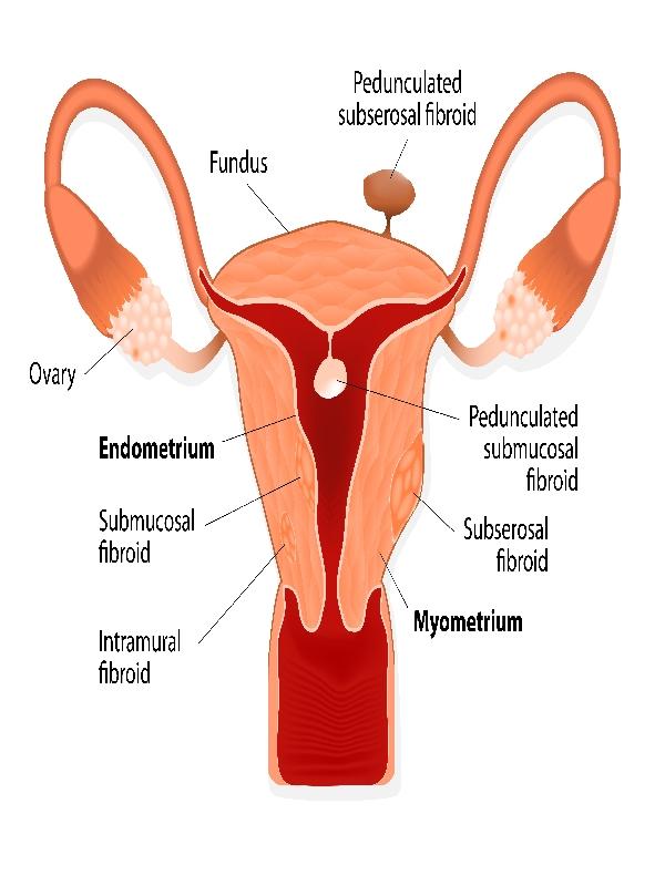 leiomyomas